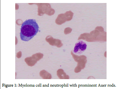 blood-lymph-Myeloma-cell