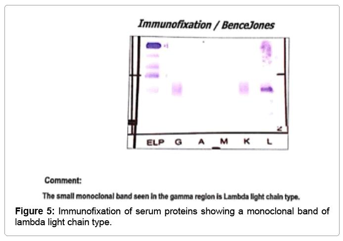 Blood Lymph Serum Proteins