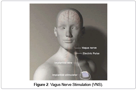 brain-disorders-therapy-Vagus-Nerve