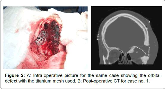brain-tumors-neurooncology-Intra-operative
