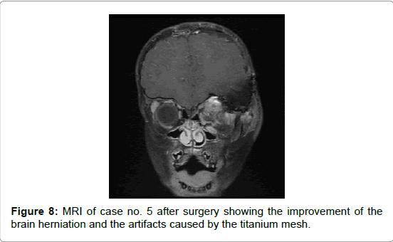 brain-tumors-neurooncology-brain-herniation