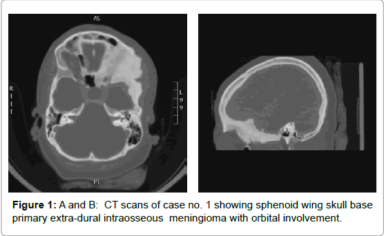 brain-tumors-neurooncology-extra-dural