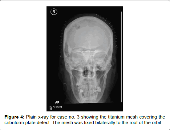 brain-tumors-neurooncology-x-ray