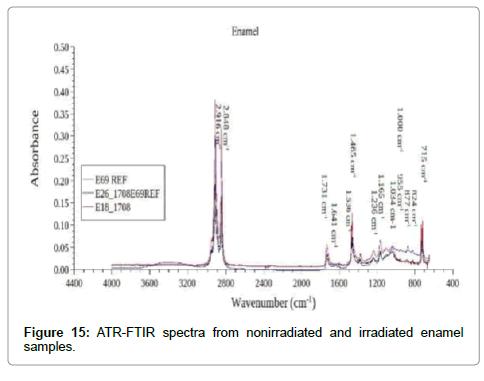 cancer-science-therapy-ATR-FTIR-spectra