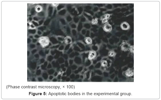 cancer-science-therapy-Apoptotic-bodies