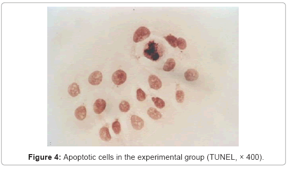 cancer-science-therapy-Apoptotic-cells