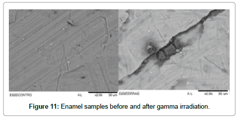 cancer-science-therapy-Enamel-samples