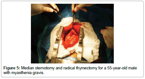 cancer-science-therapy-Median-sternotomy-radical