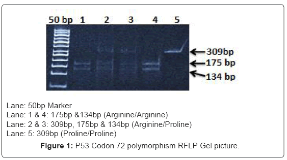cancer-science-therapy-RFLP-Gel