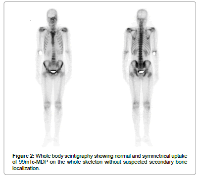 cancer-science-therapy-Whole-body-scintigraphy