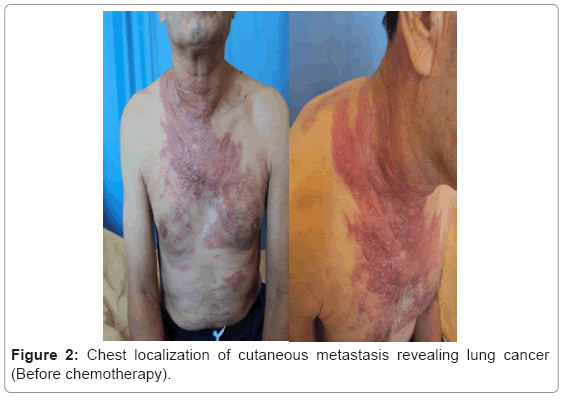 cancer-science-therapy-cutaneous-metastasis