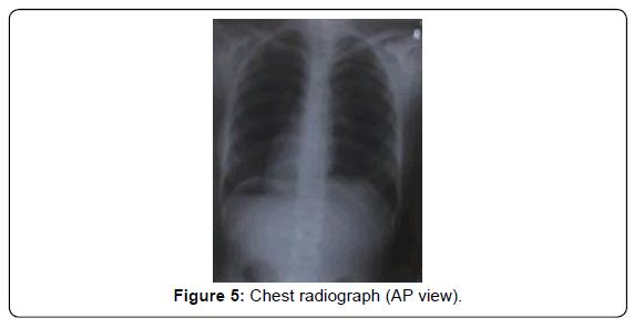 carcinogenesis-mutagenesis-Chest-radiograph