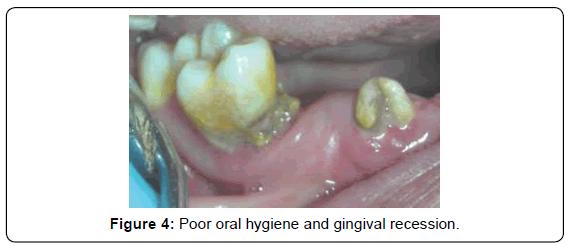 carcinogenesis-mutagenesis-gingival-recession