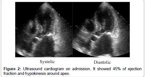 cardiovascular-diseases-cardiogram-admission