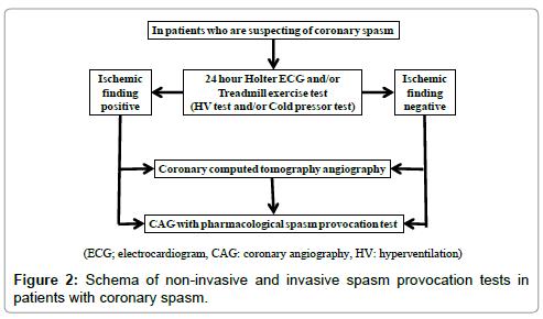 cardiovascular-diseases-diagnosis-patients-coronary-spasm