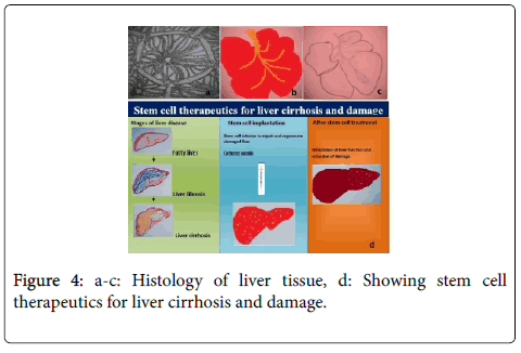 cell-science-therapy-liver-cirrhosis