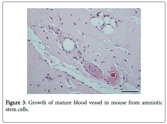 cell-science-therapy-mature-blood