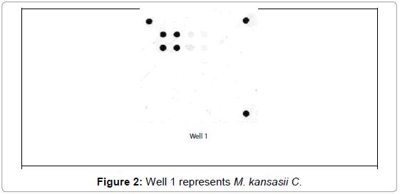 cellular-molecular-biology-Well-represents-kansasii