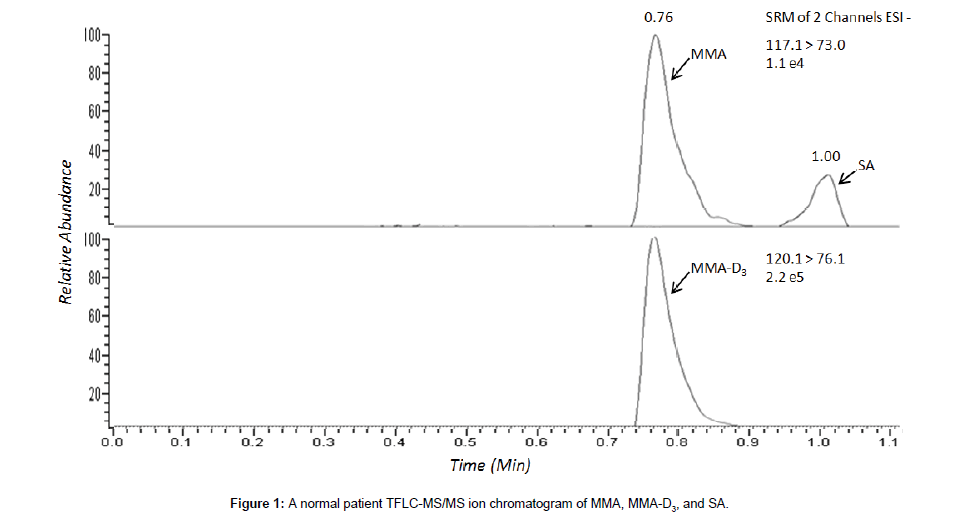 chromatography-separation-chromatogram