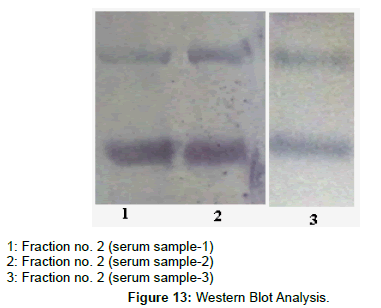 chromatography-separation-techniques-Western-Blot