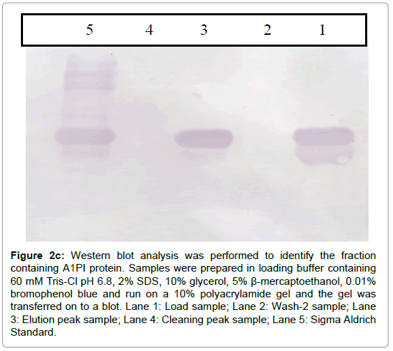 chromatography-separation-techniques-Western-analysis-identify