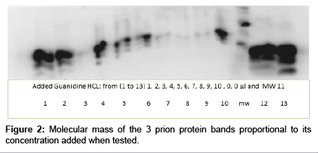 chromatography-separation-techniques-protein-bands