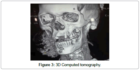 clinical-case-reports-3D-Computed-tomography