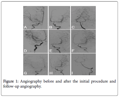 clinical-case-reports-Angiography-initial-procedure