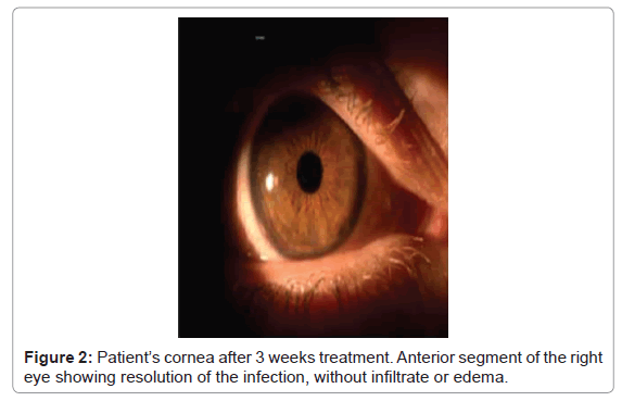 clinical-case-reports-Anterior-segment-right-eye