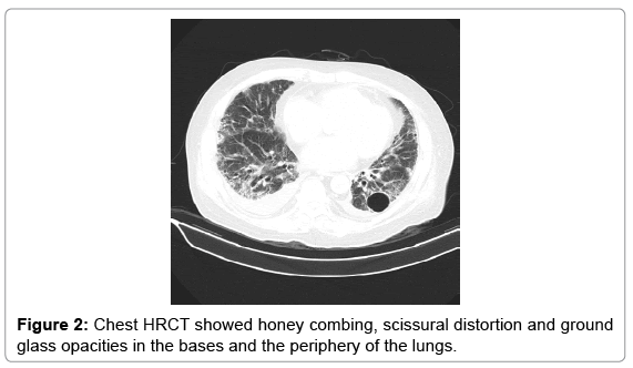 clinical-case-reports-Chest-HRCT
