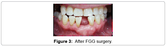 clinical-case-reports-FGG-surgery