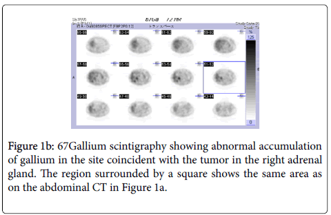 clinical-case-reports-Gallium-scintigraphy-abnormal-accumulation