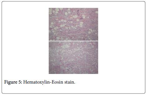 clinical-case-reports-Hematoxylin-Eosin