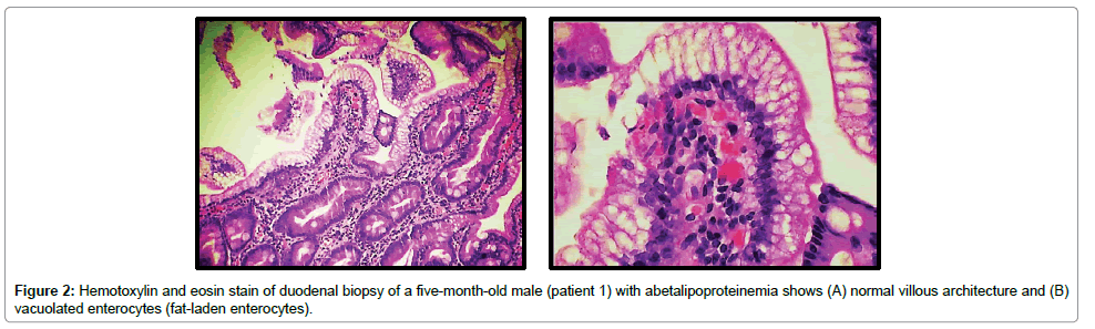 clinical-case-reports-Hemotoxylin-eosin-stain-duodenal