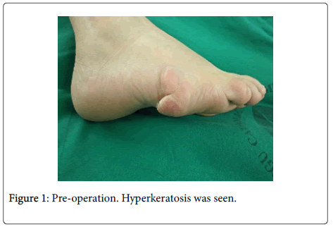 clinical-case-reports-Hyperkeratosis