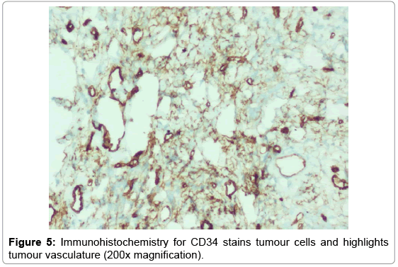 clinical-case-reports-Immunohistochemistry-stains