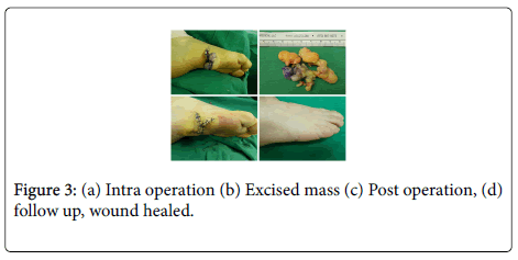 clinical-case-reports-Intra-operation
