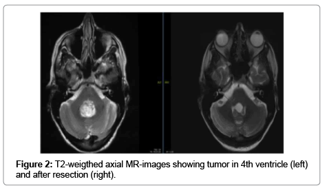 clinical-case-reports-MR-images