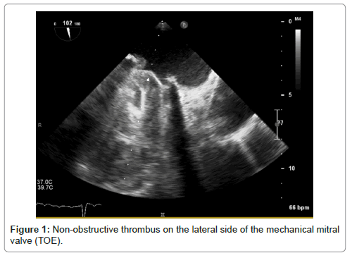 clinical-case-reports-Non-obstructive-thrombus