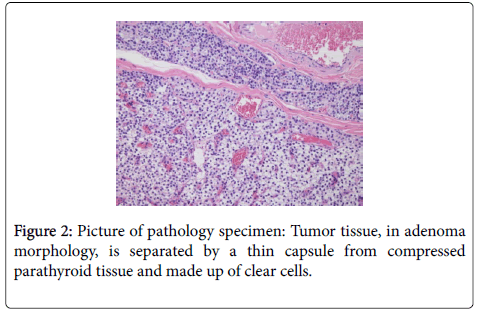 clinical-case-reports-Picture-pathology-specimen