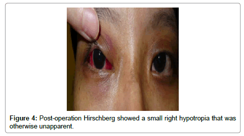 clinical-case-reports-Post-operation-Hirschberg