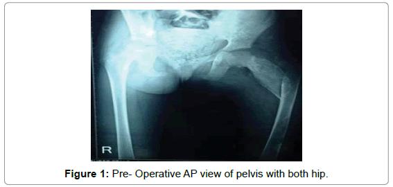 Fibulare Transplantation für fibröse Dysplasie mit pathologischen ...