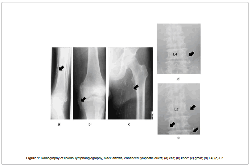 clinical-case-reports-Radiography-lipiodol-lymphangiography