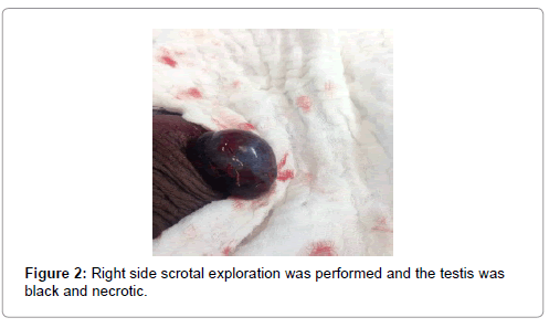 clinical-case-reports-Right-side-scrotal-exploration