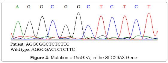 clinical-case-reports-SLC29A3-Gene