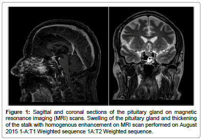 clinical-case-reports-Sagittal-coronal-sections