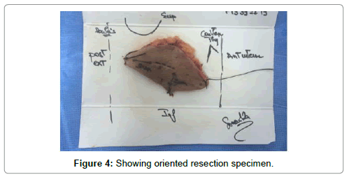 clinical-case-reports-Showing-oriented-resection-specimen