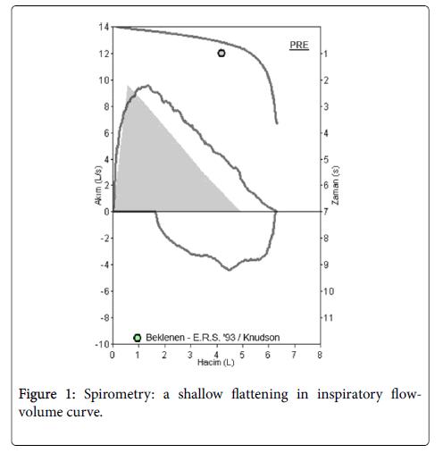 Spirometry-flattening-inspiratory