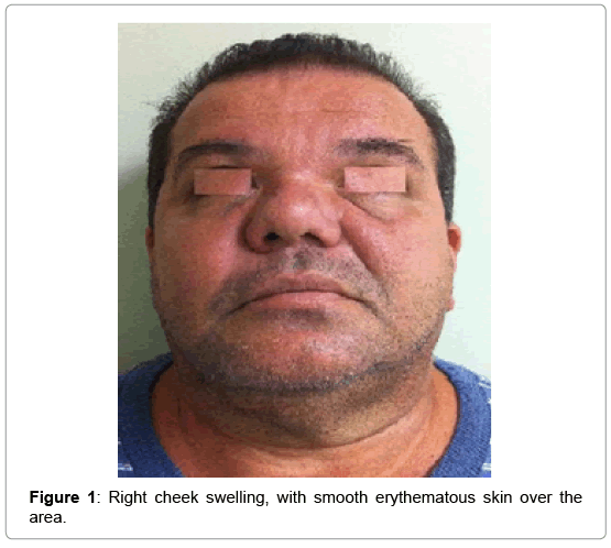 clinical-case-reports-cheek-swelling