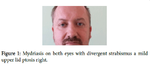clinical-case-reports-divergent-strabismus